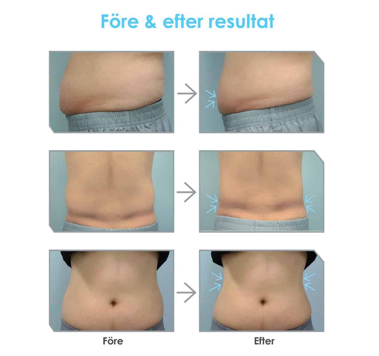fettfrysning före efter