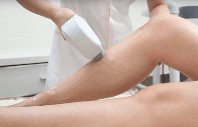 Utbildning / Kurs - Permanent hårborttagning med IPL och Laser