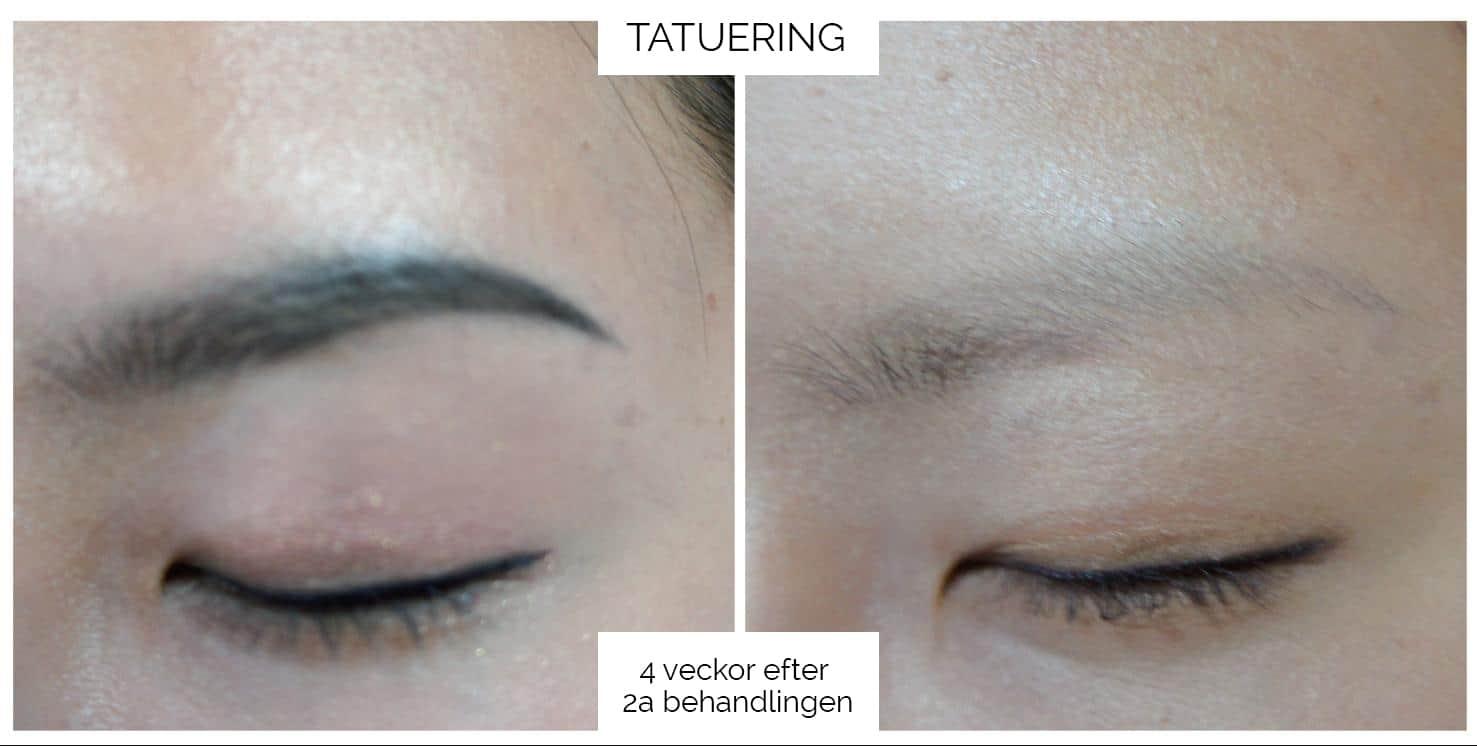 Pastelle - Tatueringsborttagning Ögonbryn