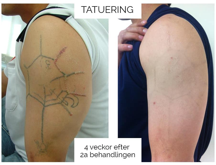 Pastelle - Tatueringsborttagning
